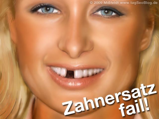 Zahnersatz (Zahnimplantate aus hochwertigem Kunststoff)