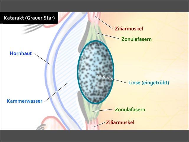 Katarakt (med.: Grauer Star)